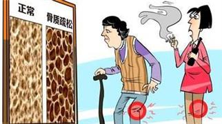 """骨質疏松日:""""瘦小老太太""""尤需警惕""""骨脆脆"""""""