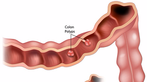 切除結腸息肉,預防大腸癌