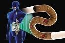新型氣敏膠囊有助于診斷腸道疾病