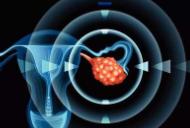 中國研究者發現卵巢癌無創診斷新方法
