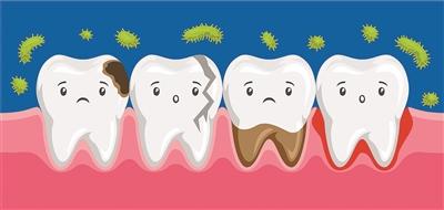 牙齒的花式疼痛你説得清楚嗎